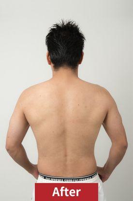20代男性、ダイエット後のサイド写真